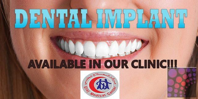 DENTAL IMPLANT FOR LOW PRICE IN AJMAN