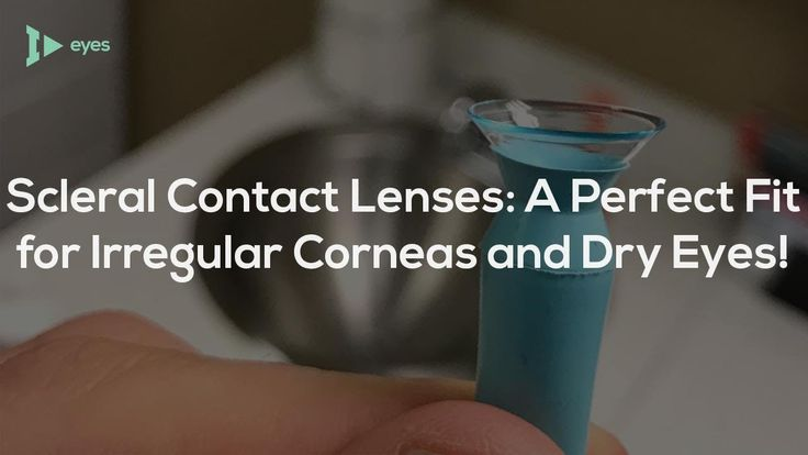 Scleral Contact Lenses: A Perfect Fit for Irregular Corneas & Dry Eyes!
