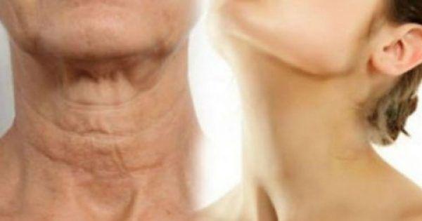 Ένα από τα πρώτα σημάδια της γήρανσης είναι η χαλάρωση του δέρματος στο λαιμό. Όταν οι μύες του λαιμού δεν συνδέονται με οστά ή συνδέσμους που εξασφαλίζουν