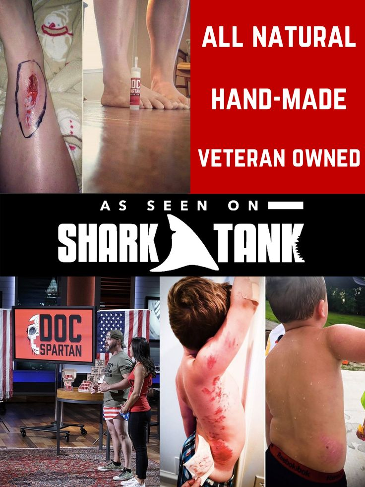 As seen on shark tank in 2020 shark tank diaper rash