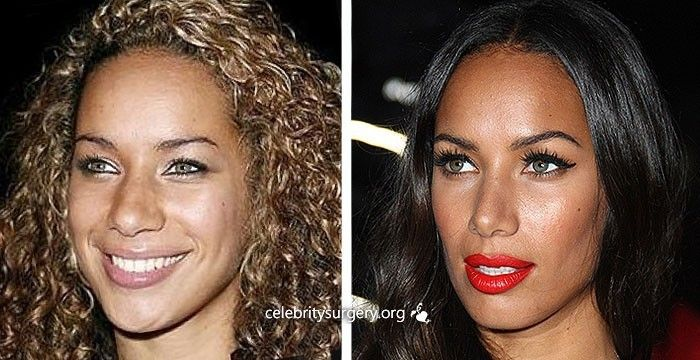 African American Rhinoplasty Before and After | Photos ...
