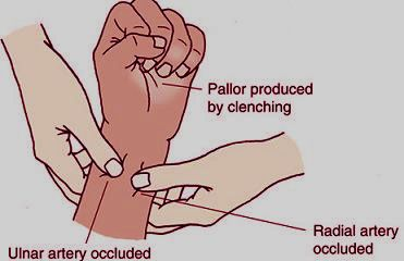 Allen's Test - a check for alternative circulation  Apply pressure to client's ulnar and radial arteries at the SAME TIME; ask client to open and close hand, hand should blanch; release the pressure from the ulnar artery while continuing to compress the radial artery. Assess the color in the extremity distal to the pressure point - pinkness should return within 6 seconds [indicating that the ulnar artery is sufficient to provide hand with adequate circulation if radial artery is