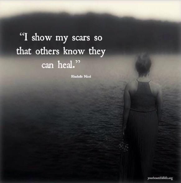 """I show my scar so that others know they can heal."""