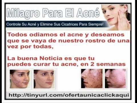 Como curar el acne rapido, Como eliminar el acne barros y espinillas, - http://solucionparaelacne.org/blog/como-curar-el-acne-rapido-como-eliminar-el-acne-barros-y-espinillas/