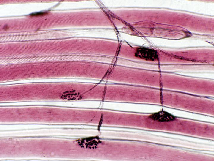 ever wonder how your muscles move your body? this is a Neuromuscular junction. check out http://neuromuscularjunction.net