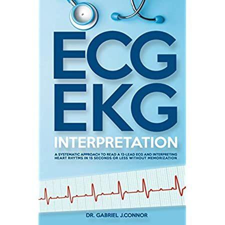 Ecg Pocketcard Borm Borm 9781591034896 Books Amazon Ca Di 2021