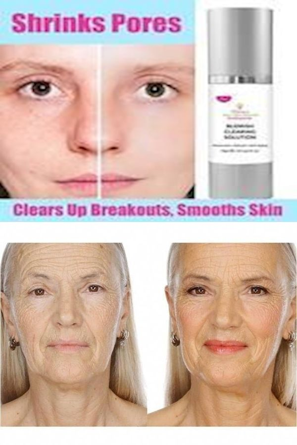 Professional Skin Care How To Take Care Of Skin After 40 Years Best Skin Care Line For Late 20s In 2020 Professional Skin Care Products Skin Care Good Skin