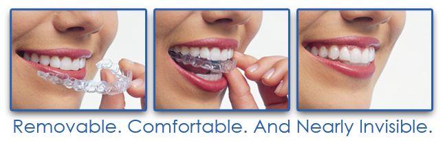 """Contenţia este necesară deoarece ligamentele care fixează dinţii în os sunt foarte elastice şi au o """"memorie"""" foarte bună – odată aparatul îndepărtat, elasticitatea ligamentelor tinde să readucă dinţii spre poziţia iniţială, pierzându-se astfel aspectul ocluziei pentru care atât medicul, cât şi pacientul au depus atâta efort.  Pentru detalii si programari, adresati-va medicului ortodont: 0723.726.125 / 031.805.9027 / contact@gentledentist.ro"""