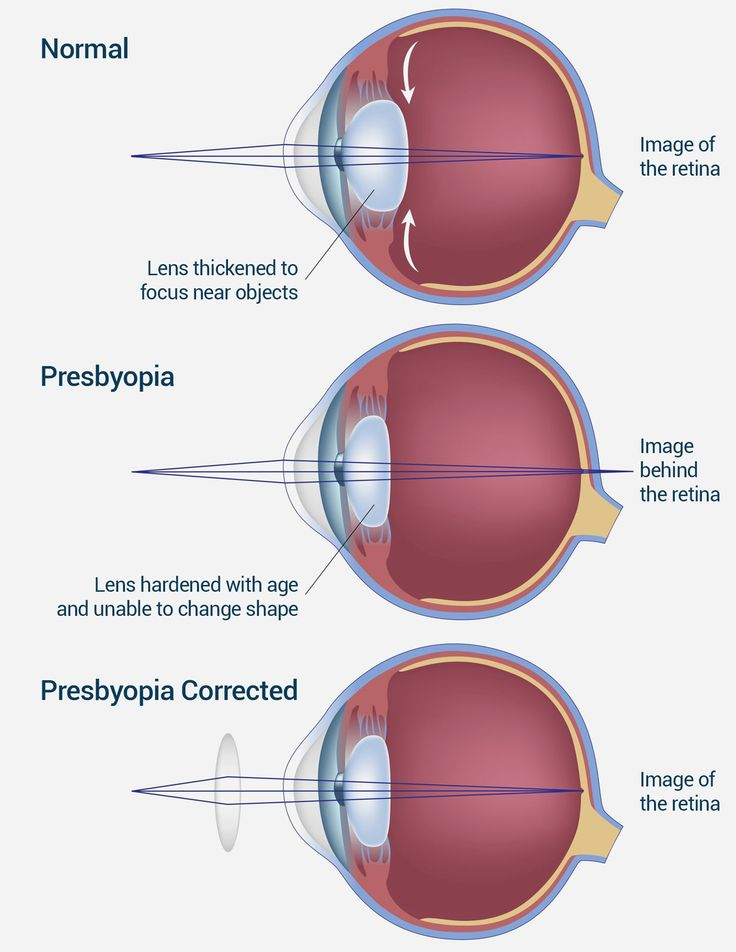 Best 25 Human Eye Diagram Ideas On Pinterest Eye
