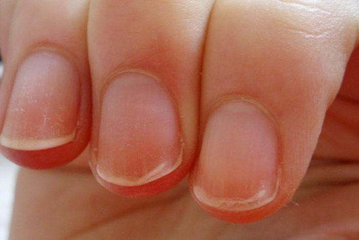 Come guarire le unghie che si sfaldano >>> http://www.piuvivi.com/bellezza/unghie-lamina-sfaldate-spellate-trattare-guarire-rimedio.html <<<