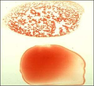 """In some forms of IMHA, the red cells actually stick together (""""agglutinate"""").  The drop of blood at the top of the picture demonstrates this agglutination, giving the blood a clumpy appearance. Below that, blood from a normal dog."""