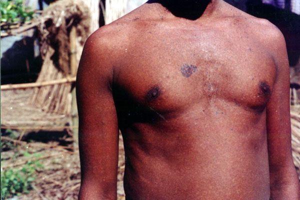 Tratament cu lipitori pentru intoxicatie cu arsenic