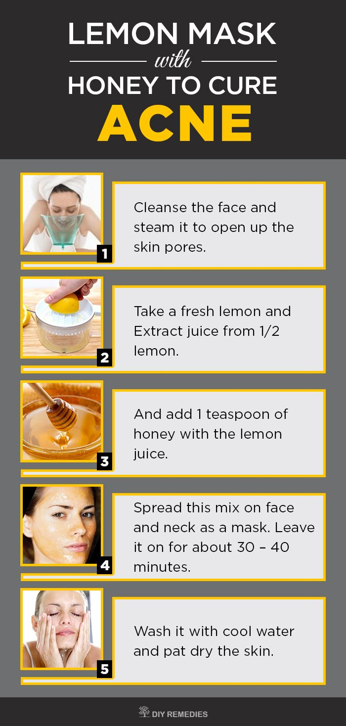 How to Get Rid of Acne with Lemon - DIY Natural Home Remedies Honey has antibacterial, antioxidant and anti-inflammatory properties that clear the bacteria and soothes the inflammation caused due to pimples. This combination prevents the breakouts from