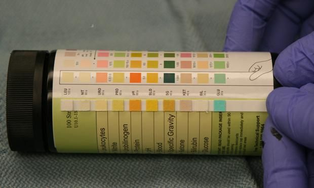 Urinalysis is a key health and hydration indicator that can provide important clues to many disease diagnoses.