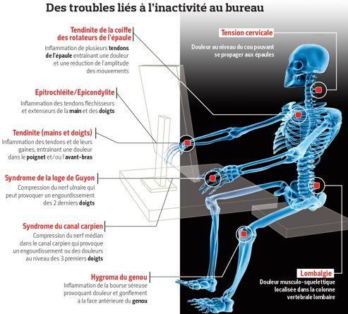 Le cou, première victime de la vie de bureau | Actualité | LeFigaro.fr - Santé