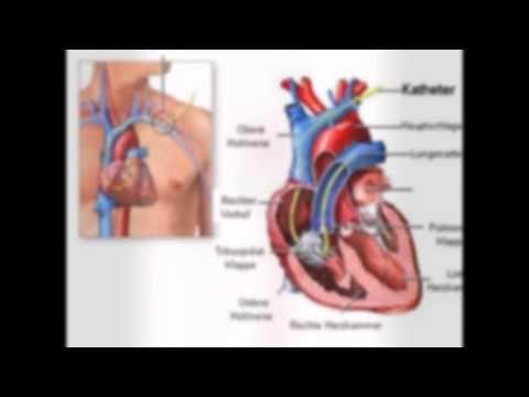 herz seite herz seite Hearts (im Singular Herz Latein Anatomie Corp griechischen und Herzkrankheit oder Herz des lateinischen καρδία) kommen in verschiedenen herz seite Gruppen von Tieren muskuläres Hohlorganherz seite das Blut mit rhythmischen Kontraktionen oder Hämolymphe durch den Körper und somit sicherzustellenherz seite die Lieferung aller Geräte Pumpen