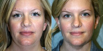 Worth It Rating of Cosmetic Treatments - RealSelf