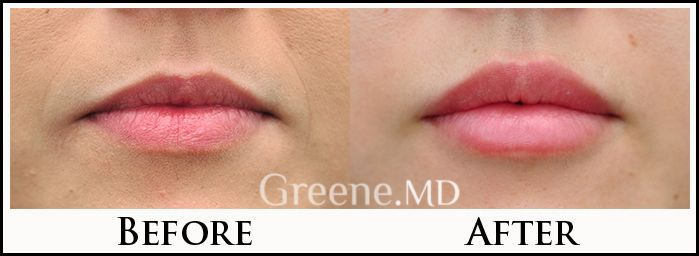 Beautiful lip augmentation before and after photo by Dr. Ryan Greene , Facial Pl…