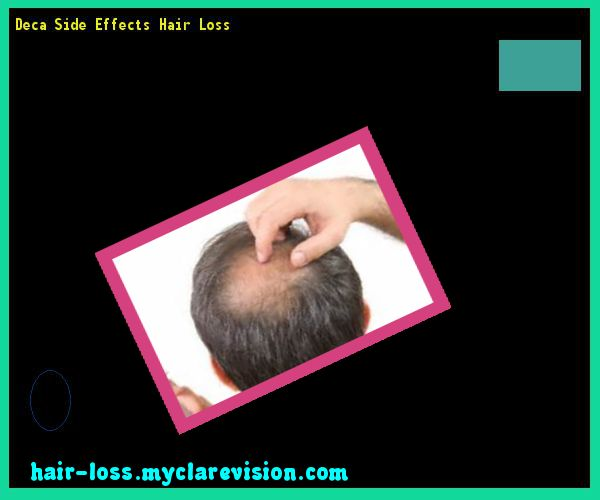 Deca Side Effects Hair Loss 210726 - Hair Loss Cure!