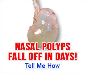 Treat Polyps Tea Tree Oil Nasal polyps cause a lot of irritation and problems in people, no matter what their size is. These benign soft growths in the shape of a grape inside the nasal cavities mi…