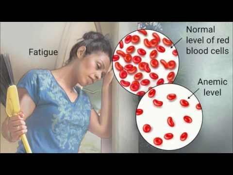 Causes Symptoms and Treatment of Anemia - WATCH VIDEO HERE -> http://bestcancer.solutions/causes-symptoms-and-treatment-of-anemia    *** cancer causing anemia ***   Causes Symptoms and Treatment of Anemia anemia and oxygen anemia numbers in blood test information of anemia high anemia levels autoimmune hemolytic anemia anemia and breathlessness can anemia cause migraines anemia is what is annemia what can cause low red...