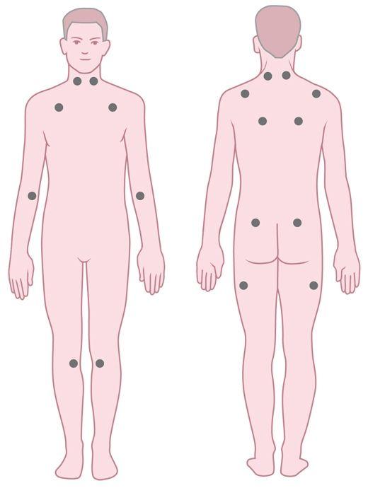 Tenderpoints bij fibromyalgie