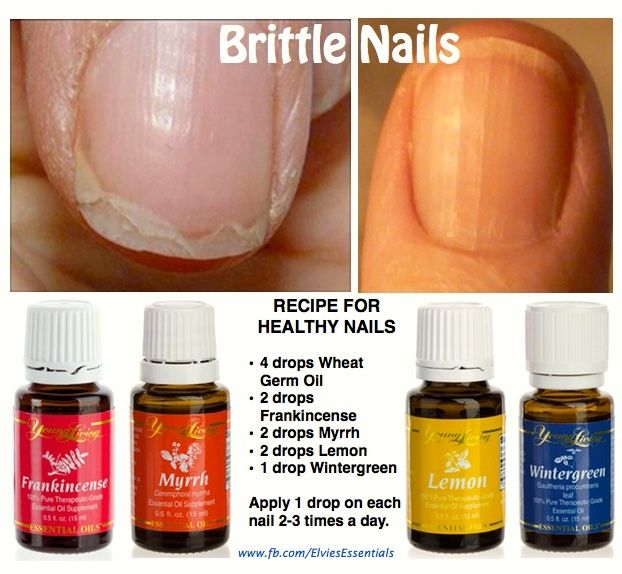 Brittle nails Young Living Essential Oils | Nail brittle nails