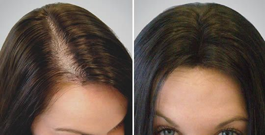 Come accelerare la ricrescita dei capelli con gli amminoacidi | Rimedio Naturale