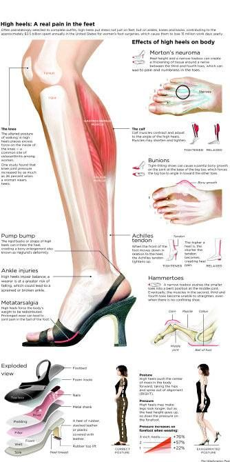 Podiatrists urge women to wear more suitable footwear, or at least to minimize the damage.