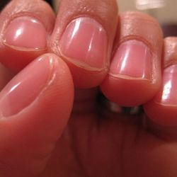 Do you have brittle nails? Prepare yourself a natural strengthener. -DIY
