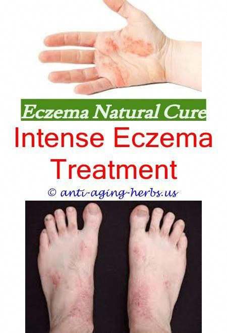 Eczema Doctor Puriya Cream For Eczema Reviews Eczema Cream For