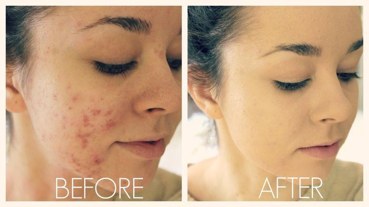 BLOG UPDATE | How to camouflage #acne with #makeup!  Watch the video on my blog
