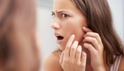 Descubre porqué aparece el acné y qué tratamientos utilizar para eliminarlo naturalmente. http://comoquitarlosgranos.com/eliminar-acne-forma-natural/