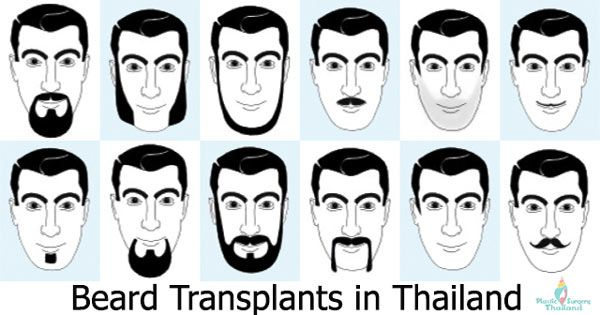 Facial hair transplants can range from a minor filling in or thin coverage of a limited area to full restoration of a thick, full goatee or beard http://plasticsurgerythailand.org/facial-hair-grafting-beard-transplants/