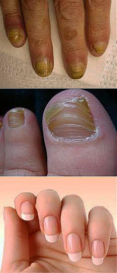 Грибок ногтей - лечение народными средствами ногтевого грибка пальцев стоп, ног и рук - Лечение народными средствами на KRASGMU.NET