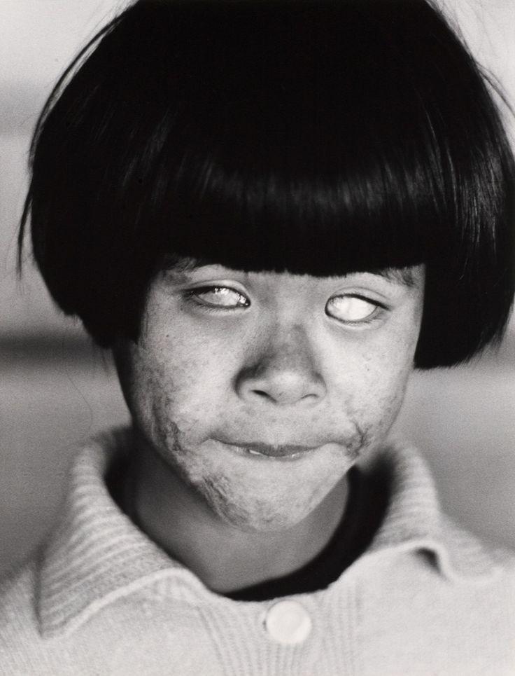 Christer Strömholm. 'Hiroshima'. 1963/1981