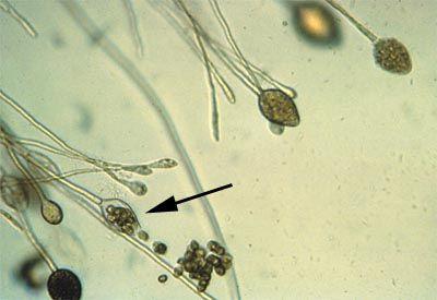 zoosporangium: sporangium, or spore case, that bears zoospores (Phytophthora gonapodyides)