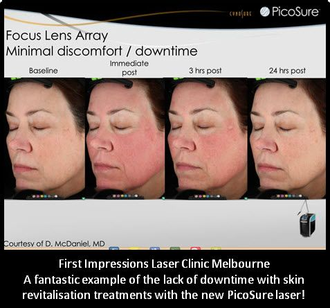 At First Impressions Laser Clinic horrible recovery times are a thing of the past with the new PicoSure Laser!   First Impressions often have clients pop in through the day on the way to pick up children or in their lunch break.  Fantastic recovery time on all facial revitalisation treatments!