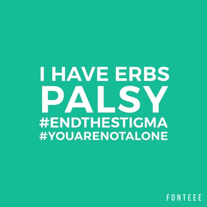 I have ERBS Palsy #endthestigma #youarenotalone