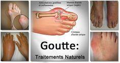 La goutte est une forme complexe d'arthrite qui est couverte de mystère et est généralement négligée par des gens qui n'en n'ont pas fait l'expérience. Ce problème de santé peut être insupportable pour ceux qui l'ont. La goutte est causée par l'accumulation d'acide urique dans le sang à la suite d'une dégradation des déchets qui sont traités par …