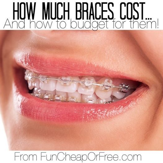 How much braces cost and how to budget for them! From FunCheapOrFree.com