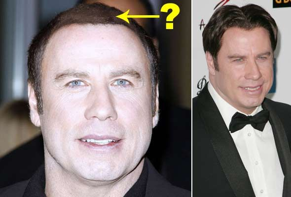 John Travolta Plastic Surgery