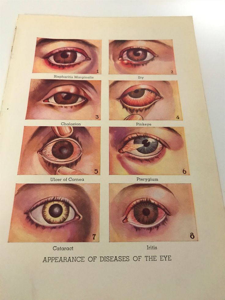 ANTIQUE unique medical bookplate Diseases of the eye illustrations art print medical oddities weird quirky ephemera human body anatomy decor by VintageArtsCo on Etsy https://www.etsy.com/listing/529704563/antique-unique-medical-bookplate
