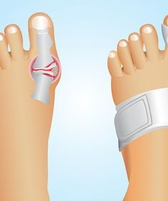 It is important to understand what is a bunion. Here are a few tips on getting rid of bunions using natural home remedies.