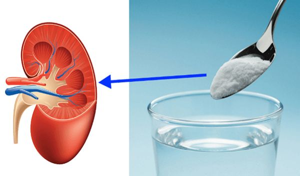 Repair Kidneys Naturally And With 1 Ingredient! – Health is Paradise