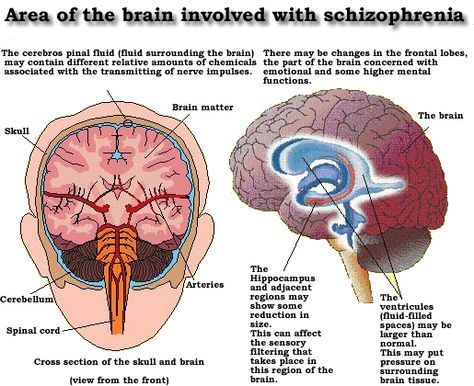Matter over Mind: Areas of the brain involved with schizophrenia