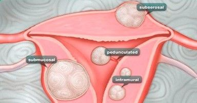 Best 20 Treatment For Ovarian Cysts Ideas On Pinterest