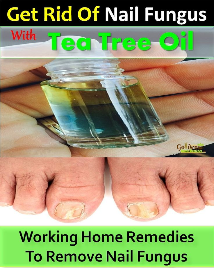Nail Fungus: Tea Tree Oil For Nail Fungus: How To Get Rid Of Nail Fungus With Tea Tree Oil: 21 Home Remedies for Nail Fungus, How To Use Tea Tree Oil For Nail Fungus, Nail Fungus Causes, Symptoms & Easy Treatments. When fingernails or toenails are constantly exposed to moisture and either yeast or mold, fungus grows beneath them, turning them yellow and making them thick, crumbly, swollen, and inflamed. Here's an overview of the properties and home remedies that make tea tree oil such an…