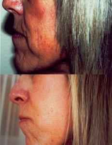 Anti Ageing!! look at this woman after 3 months using skincerity!