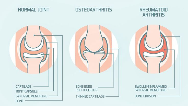 Rheumatoid arthritis is a systemic autoimmune disease while osteoarthritis is a degenerative disease in which a particular joint is ground down by injury or overuse. Learn how symptoms of RA and OA differ and more on EverydayHealth.com